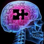 How Alzheimer Destroys the Brain